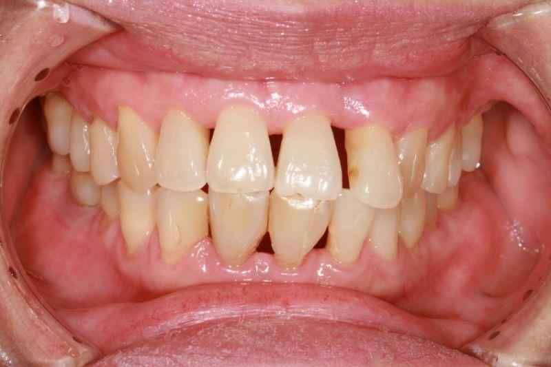 Periodontal Disease Treatment Natural Cure